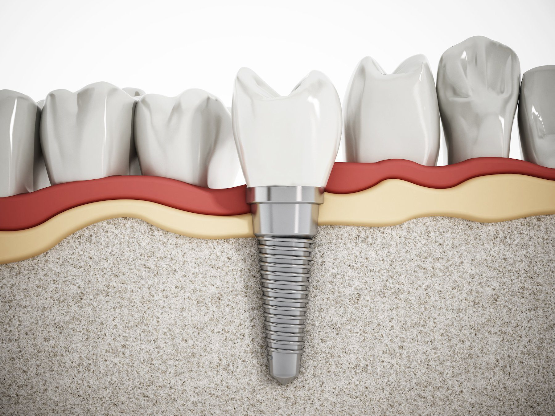 how-to-know-if-you-need-dental-implants-west-kelowna-restore