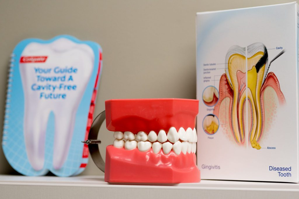 Read more on How to Prevent Cavities: Top Tips from Your West Kelowna Dentist