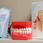 How to Prevent Cavities: Top Tips from Your West Kelowna Dentist